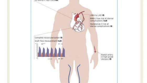 Τα χαρακτηριστικά που προτείνεται να έχει η στεφανιαία παράκαμψη